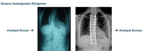 skolyozun-cerrahi-mualicesi-1
