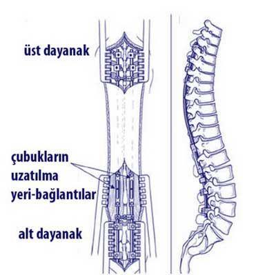 skolyozun-cerrahi-mualicesi-2